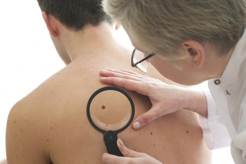 Advancements in melanoma research changing the game