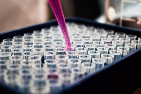 BARD1 raises $15m for cancer detection tests